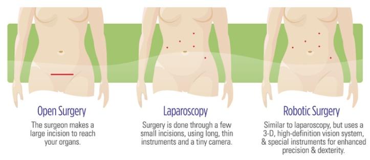 surgery-comparison